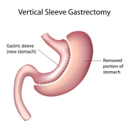 Sleeve_Gastrectomy_Illustration